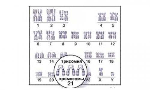 Мультицентровое исследование «Пренатальная диагностика синдрома Дауна в России в 2020 году»